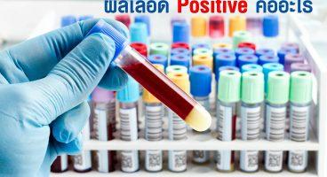 ผลเลือด Positive คืออะไร /ผลเลือด Positive แปลว่าอะไร
