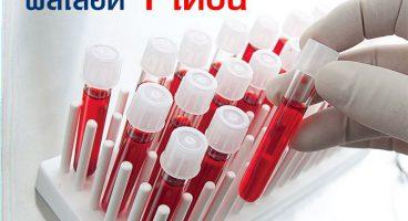 ผล เลือด 1 เดือน เอชไอวี