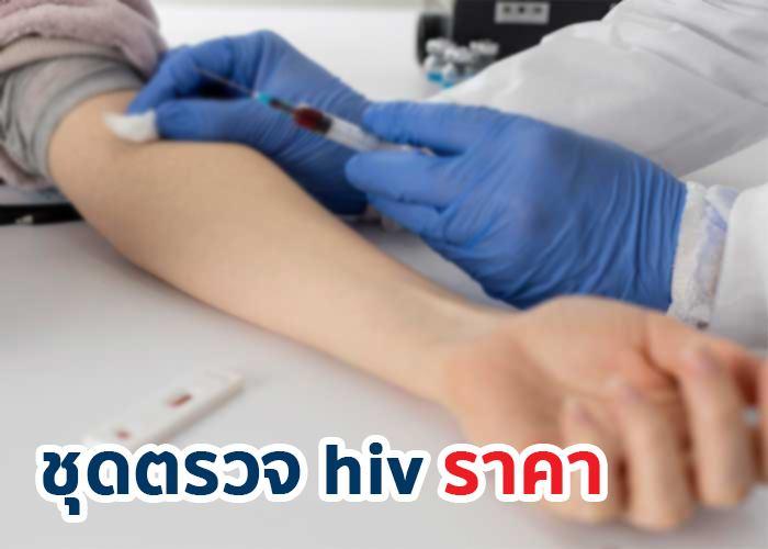 ชุดตรวจ HIV ราคา เท่าไหร่?